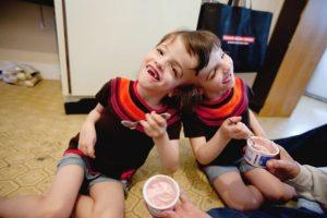 gêmeas siamesas